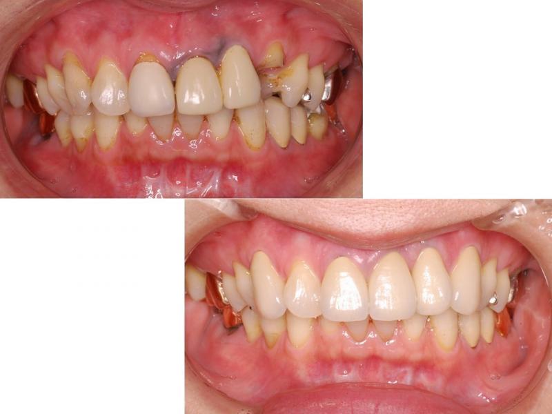 セラミックと歯肉の黒ずみ改善