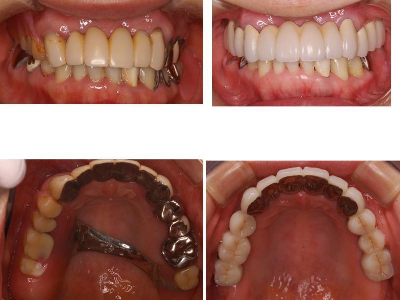 上の義歯をインプラントに