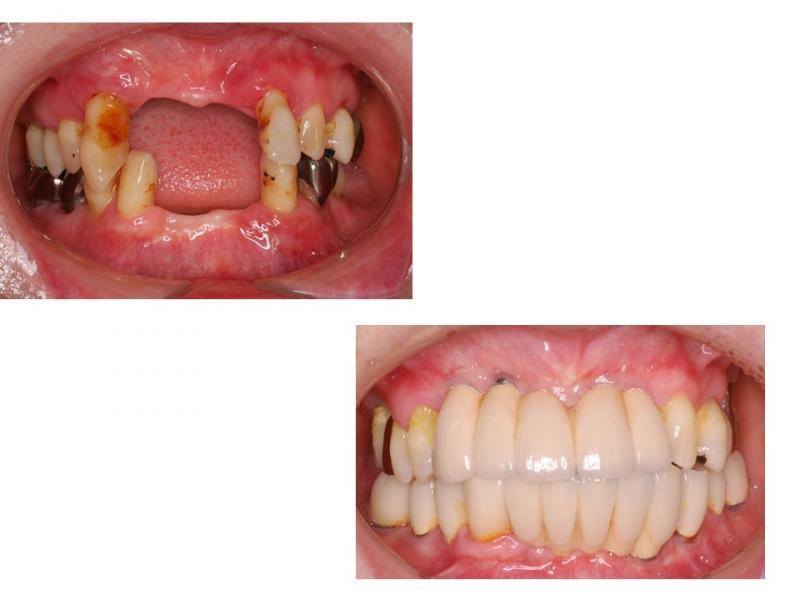 前歯のインプラント(上下)
