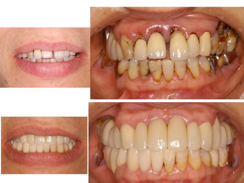 歯周病治療とインプラント・セラミック