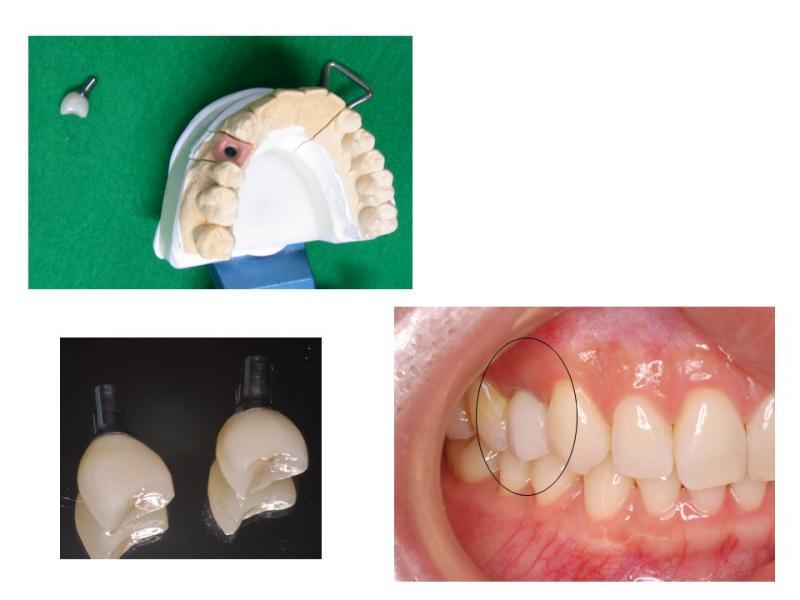 隣の歯を削らないインプラント