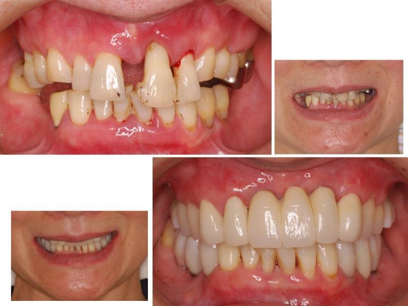 上前歯とした奥歯のインプラントとセラミック