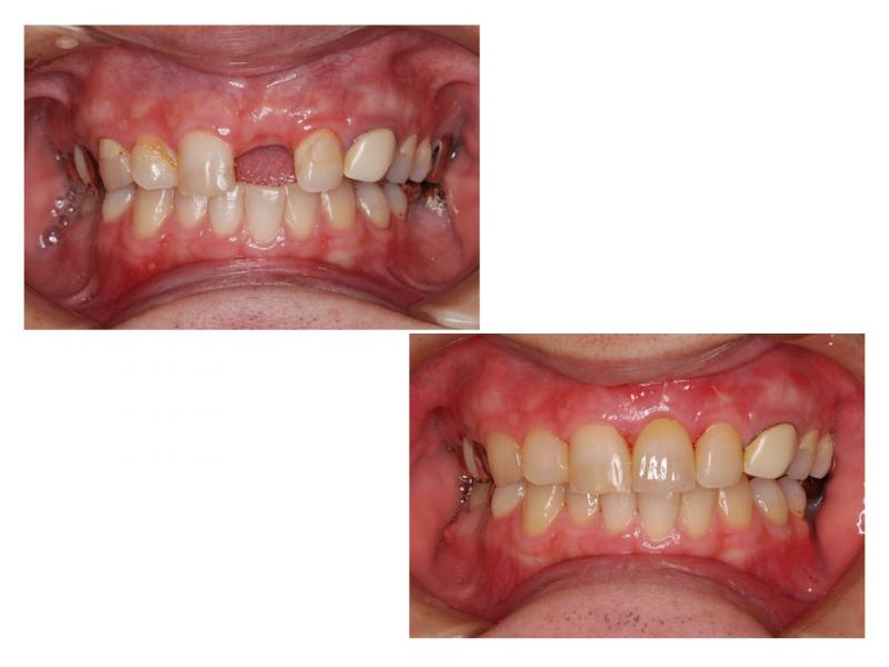 前歯にインプラント