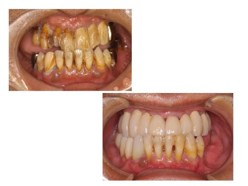 歯周病の治療とセラミック