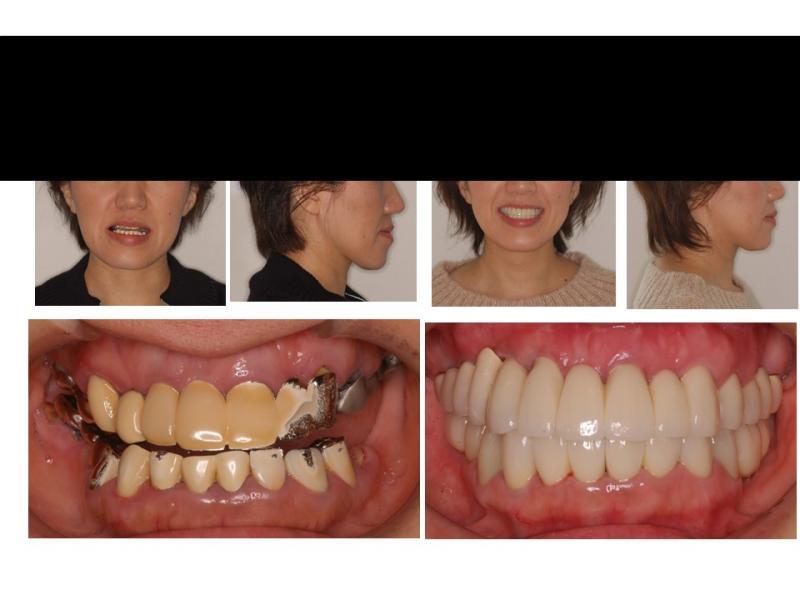 顎矯正とインプラント・セラミック