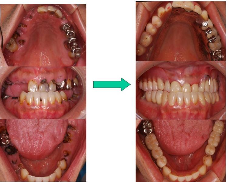 上:バネの見えない義歯<br />下:インプラント