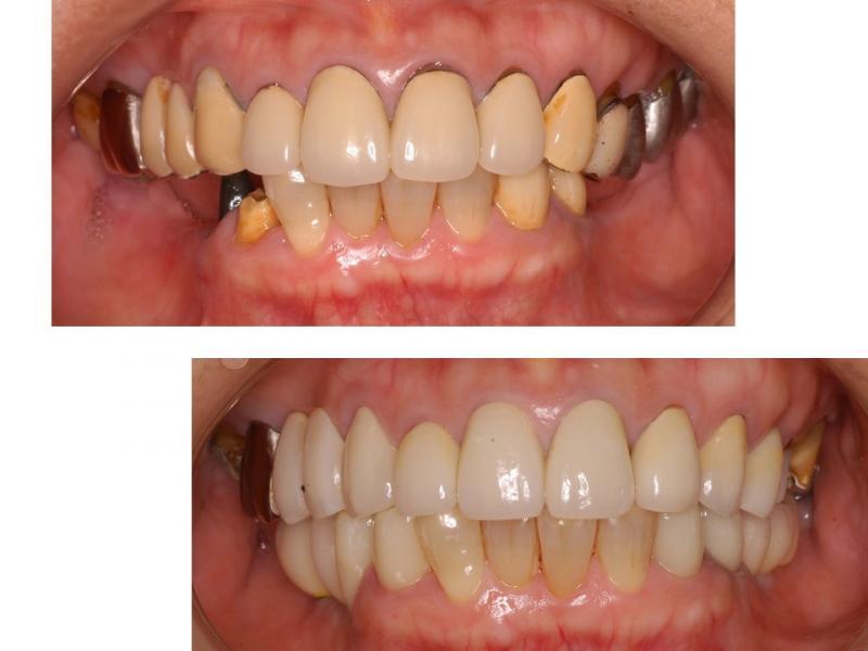 両方の奥歯のインプラント